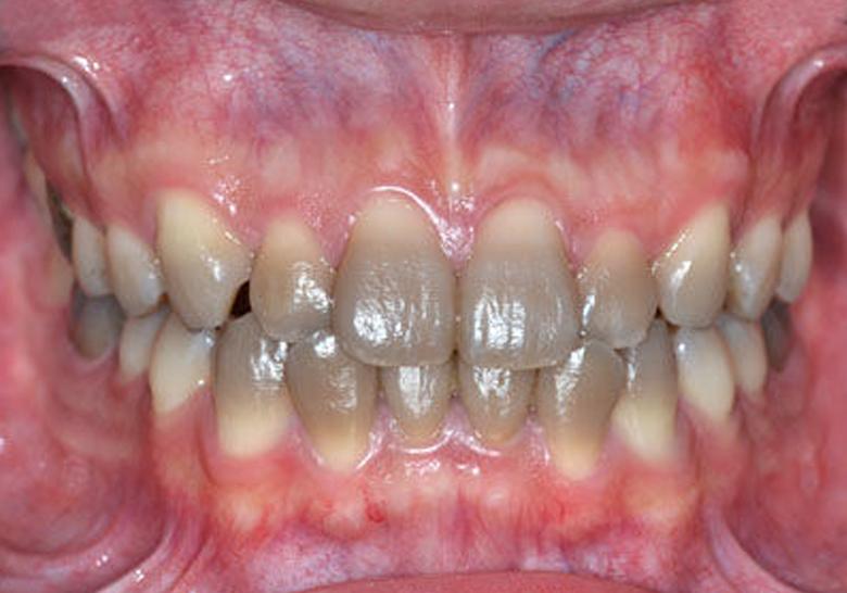 テトラサイクリン歯